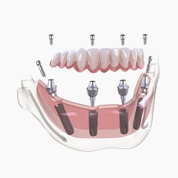 La perdita di un gran numero di denti